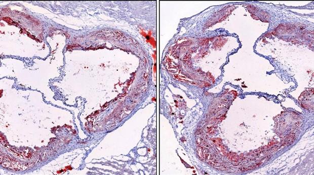 Imágenes de placa de la arteria de un modelo de aterosclerosis de ratón que experimentó un patrón de sueño normal (izquierda) y una imagen de placa arterial de un modelo de ratón que sufrió fragmentación del sueño (derecha). La cantidad de placa arterial en el ratón fragmentado del sueño es significativamente mayor.