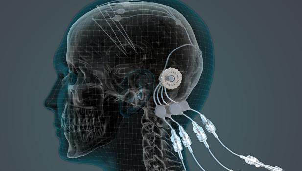 Estimulación profunda con electrodos