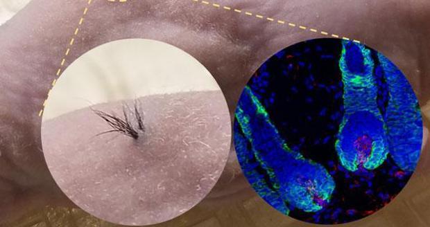Izquierda: vista exterior ampliada. derecha: imagen de microscopía fluorescente de folículos pilosos debajo de la piel; núcleos celulares (azules), células epiteliales (verdes), células de la papila dérmica humana (rojas).