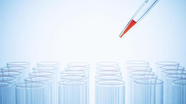 La hepatitis C se diagnostica con una análisis de sangre