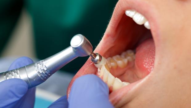 Una paciente en una cita del dentista
